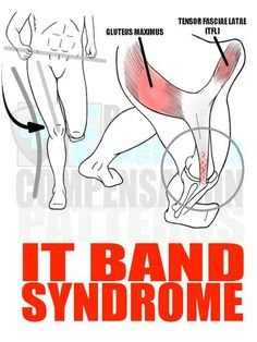 IT Band Syndrome Another Movement Dysfunction and pattern of compensation tied to Glute Amnesia Syndrome and Pronation Distortion Syndrome is IT Band Syndrome. IT Band Syndrome is the process in which the Iliotibial Tendon (IT Band) that connects the Tens Hip Flexor Pain, Tight Hip Flexors, Hip Pain, Knee Pain, Back Pain, Pilates, Tensor Fasciae Latae, It Band Stretches, Iliotibial Band Stretches