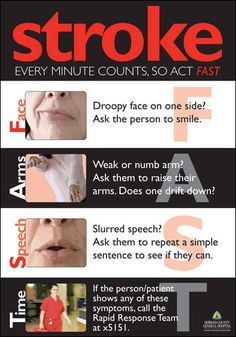 Stroke signs...FAST