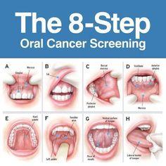 Examen de Cancer Oral: los 8 pasos que hay que seguir para detectarlo: