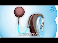 How A Cochlear Implant Works by Advanced Bionics