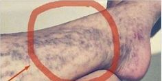 Natural Remedies For Varicose Veins Everybody Has This Miracle Cure for Varicose Veins At Home, But Many People Don't Know About It Varicose Vein Remedy, Varicose Veins, Health Remedies, Home Remedies, Natural Remedies, Herbal Remedies, Health Advice, Health Care, Health Problems