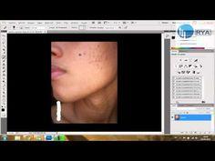 Como quitar granos Photoshop CS5 - Ryalogic HD - http://solucionparaelacne.org/blog/como-quitar-granos-photoshop-cs5-ryalogic-hd/