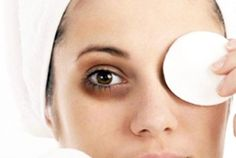 Dark circle is one of the most common problem seen among the majority of the individual. Dark circles under the eyes tend to age your appearance more than wrinkles or grey hair. Dark Circle Cream, Eye Cream For Dark Circles, Dark Circles Under Eyes, Eye Circles, Beauty Secrets, Beauty Hacks, Dark Circle Remedies, Best Eye Cream, Puffy Eyes