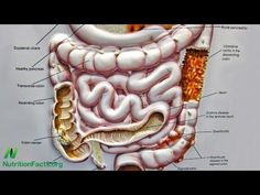 Preventing Crohn's Disease With Diet: Diets centered around whole plant foods may help prevent Crohn's disease through the benefits of fiber on the maintenance of intestinal barrier function and the avoidance of certain processed food additives such as polysorbate 80. Volume 22, Number 12. Released December 29, 2015.