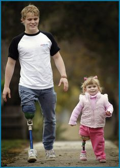 Supporting Amputees - Limbs 4 Life. This girl is about the age I received my prosthesis. She is so cute.