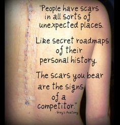 This seriously means so much to me.  A Grey's Anatomy quote and a scar from a spinal fusion surgery which I had. Perfect inspiration.