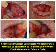 Criterios de Evaluación Odontológica Pre-Radioterapia y Necesidad de Tratamiento de las Enfermedades Orales Post-Radioterapia en Cabeza y Cu...