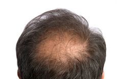 10 things you should know about male hair loss - Men's Health