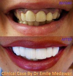 Want to change the appearance of one or more teeth veneers are thin zirconia porcelain veneer white google solutioingenieria Image collections