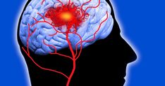A report from Queen Mary University of London and the London School of Economics estimates that strokes will claim 187,000 lives a year by 2035
