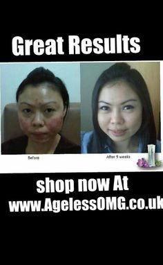 Instantly Ageless™ eye cream - a powerful anti-wrinkle microcream that works like botox – in just 2 minutes!