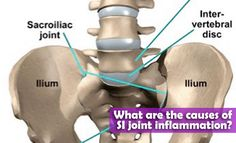 What are the causes of SI joint inflammation