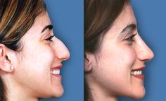 Case 19 | Geoffrey Tobias, MD Tobias, Bulbous Nose, Rhinoplasty Before And After, Photo Galleries, Rhinoplasty