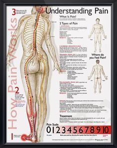 Understanding Pain anatomy poster defines the types of pain, lists symptoms for each and includes a pain scale. Neurology chart for doctors and nurses.