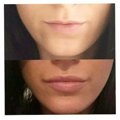 Before & After 'Lips to Love'! This gorgeous girl sent in her amazing results after receiving lip injections at our West Lakes Clinic. Botox Fillers, Dermal Fillers, Lip Fillers, Skin Makeup, Beauty Makeup, Hair Beauty, Botox Before And After, Lip Augmentation, Diy Lip Gloss