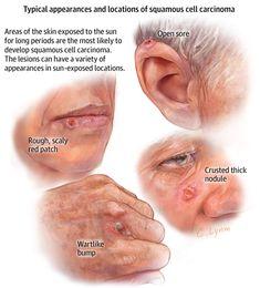Squamous Cell Carcinoma. JAMA Dermatol. 2013;149(12):1448. doi:10.1001/jamadermatol.2013.6947.