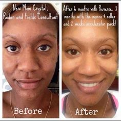 Check out R+F Consultant Crystal's 6 months results from using Reverse, Macro E and Amp MD Tool. She just started using the Reverse Accelerator Pack! Her results are beautiful: her skin discoloration has faded and her skin glows! Take our 60 day challenge and you will be amazed at what it can do for your skin http://iarman.myrandf.com
