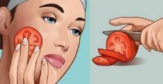 Problematic skin issues such as eczema, acne and age spots are a cause for concern for many people. Cellulite, Tomato Face, Tomato For Acne, Lotion Tonique, Diy Masque, Back Acne Treatment, Spot Treatment, Smooth Face, Face Masks