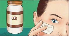 Você já deve ter ouvido falar muito sobre o óleo de coco.Mas será que sabe tudo sobre ele?o óleo de coco é antioxidante e tem propriedades anti-inflamatórias, antibacterianas, antivirais e anti-fúngicas.