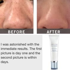 Artistry Ideal Radiance Spot Corrector - before & after. For all of your Artistry needs and more head to www.amway.com/wallis-group