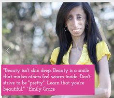 Watch this intriguing & heartfelt video thatll be sure to enlighten & encourage you! LIKE & SHARE if you, too, believe ALL GODs CHILDREN ARE BEAUTIFUL. Watch here now: http://www.truli.net/entertainment/worlds-ugliest-woman-is-actually-beautiful