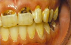 Bad Tooth Decay Always interesting what you can find when you type in surgery and other related terms Board Certified Plastic Surgeons, Wisdom Teeth, Baltimore Maryland, In Cosmetics, Teeth Cleaning, Inktober, Surgery, Tooth, Type