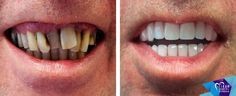 This man had serious periodontal gum disease and couldn't eat properly.  His teeth were replaced with 10 implants and a 14 unit bridge in the upper jaw and 9 implants plus a a 12 unit bridge in the lower jaw. Thanks to the treatment he received, the periodontal gum disease disappeared and he can now eat whatever he likes.