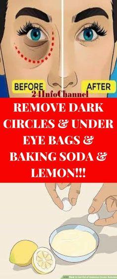 Remove Dark Circles & Under Eye Bags & Baking Soda & Lemon! Baking Soda And Lemon, Baking Soda Uses, Routine, Baking Soda Shampoo, Dark Circles Under Eyes, Under Eye Bags, Beauty Secrets, Beauty Tips, Diy Beauty