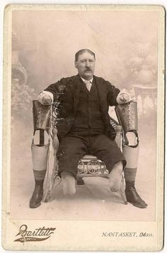 My best guess on this one. Is that it appears to be a cabinet card from the late 19th century with a gentleman being a quadruple amputee with prosthetics  from that time period. Very interesting ...........