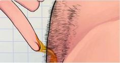How to naturally remove body hair permanently. (No waxing or shaving) - My Medicine Book Beauty Secrets, Beauty Hacks, Medicine Book, Unwanted Hair, Tips Belleza, Health And Beauty Tips, Facial Hair, Hair Removal, Face And Body