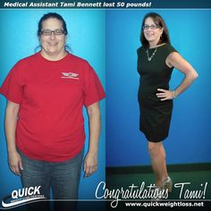 """Congratulations to Certified Medical Assistant Tami Bennett from Jupiter, Florida for losing 50 pounds on the Quick Weight Loss Centers program!  """"Now that I have reached my goal, I feel GREAT!! I feel better, look better, and have more energy. My patients have noticed a difference and ask how I did it. QWLC is wonderful and I recommend it! I reached my goal of losing 50 pounds before my 50th birthday, and I am headed to Superbowl 50 to celebrate!"""" -Tami."""