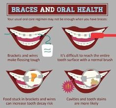 Braces and Oral Health Braces Tips, Kids Braces, Braces Smile, Teeth Braces, Dental Health, Oral Health, Dental Care, Health Tips, Stained Teeth