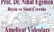Beyin Kanaması Ameliyatı (CE1) http://www.nihategemen.com/beyin-kanamasi/