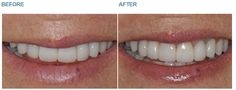 Dental Crowns - Case 6 BEFORE: Sometimes what is requested of us is to make no changes at all. This lady had previously had a full mouth reconstruction however one of the teeth had suffered repeated infection and required removal. She presented asking me to remove the tooth and to replace it with one that looked identical. AFTER: In order to replace the tooth we needed to replace crowns on the adjacent teeth, so in total three teeth were involved in this treatment. Our dental technician who…