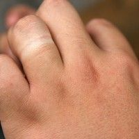 See I could do without a tan on my left hand where my fourth finger meets my knuckle. (Wake Me Up by Ed Sheeran)