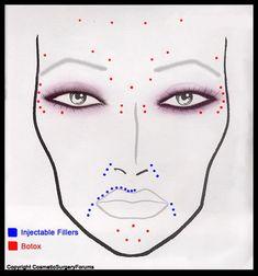Facial Fillers, Botox Fillers, Dermal Fillers, Lip Fillers, Botox Injection Sites, Botox Injections, Relleno Facial, Muscle Disorders, Facial Aesthetics