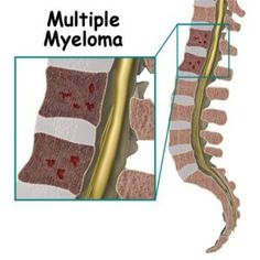 Best Treatment Options Of Multiple Myeloma
