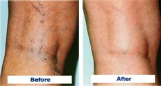 Get Rid of Varicose Veins With This Powerful Natural Remedy… Guaranteed Results!