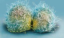 Henrietta Lacks' 'Immortal' Cells | Science | Smithsonian