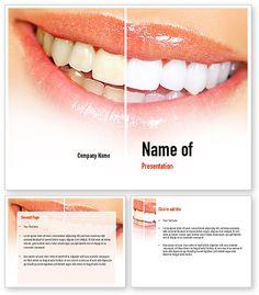 10 Best Laser Teeth Whitening Images Tooth Bleaching