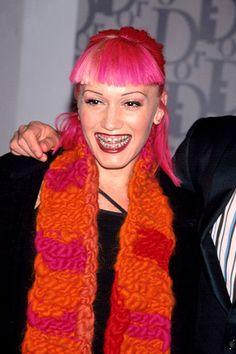 Gwen Stefani No Doubt pink hair braces 1999 Celebrity Teeth, Celebrity Smiles, Celebrities With Braces, Celebs, Better Braces, Big Eyebrows, Gwen Stefani No Doubt, Braces Girls, Brace Face