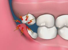 Dry Socket – This is a common side effect of the procedure