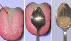 Estamos seguros de que a la mayoría de nosotros nos gustaría determinar la salud de nuestros órganos internos utilizando sólo una cuchara. Bueno, eso es lo que vamos a mostrar en esta artículo. Anuncio Sólo necesitas 4 cosas: tu boca, 1 minuto de tu tiempo, una bolsa plástica y una cuchara. Chequearás rápidamente la salud …