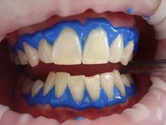 Refonte ou Création site internet pour dentiste, cabinet dentaire.