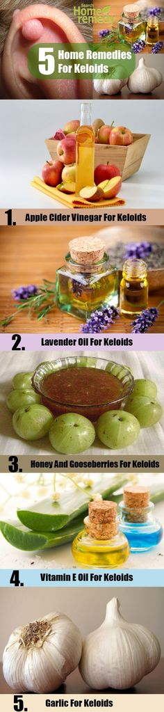 5 Home Remedies For Keloids