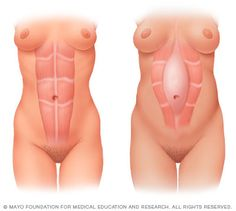 Illustration of separation of the abdominal muscles during pregnancy - mayo foundation copyrighted