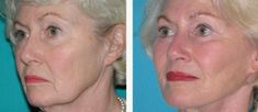 Old Grandma Discovers Wrinkle Reduction - Big Brands Threaten Lawsuit As She Gives The Recipe Away For Free. Old Grandma Discovers Wrinkle Reduction - Big Brands Threaten Lawsuit As She Gives The Recipe Away For Free. Best Anti Aging, Anti Aging Cream, Tv Doctors, Wrinkle Remover, Skin Cream, Eye Cream, Look Younger, Anti Wrinkle, Beauty Skin