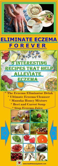 Recipes That Help Alleviate Eczema