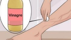 Image titled Get Rid of Varicose Veins Step 19 Varicose Vein Remedy, Varicose Veins, Get Rid Of Spider Veins, Sr1, Health And Beauty Tips, Skin So Soft, How To Get Rid, Natural Healing, Beauty Care