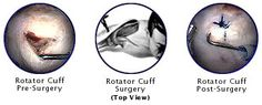 The Injury Rotator Cuff Injuries Symptoms Treatment Options Surgery After-care Prognosis Weight Lifting and Rotator Cuff